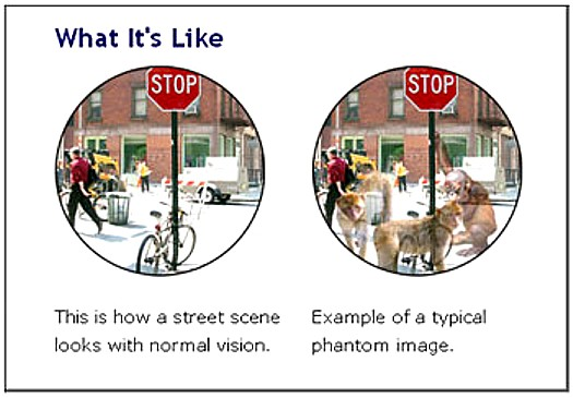 Side by side images with street scene, one without CBS hallucination and one with CBS hallucinations transparent animals and people superimposed over the real street scene.